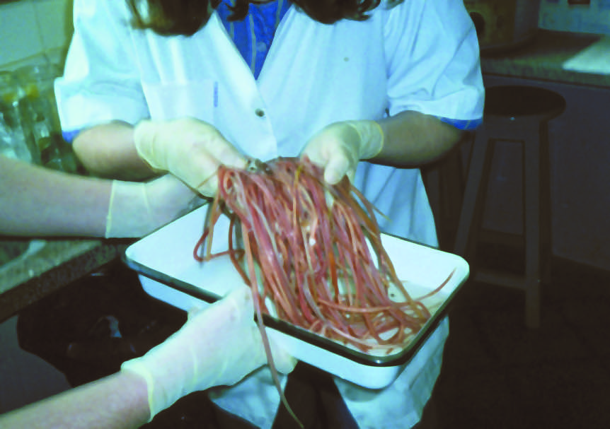 Ascaris lumbricoides adults removed from a single patient.